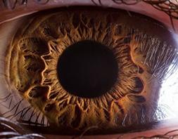 595de5b816605 Mas as pessoas geralmente desconhecem que sua ascendência e etnia têm um  papel significativo no aumento de vulnerabilidade para certos problemas de  visão.